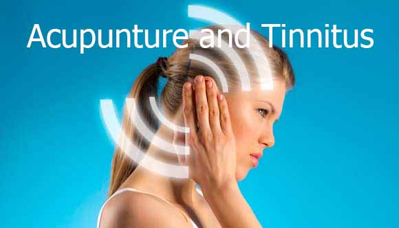 A Direct Overview Always On Fast Appliances For Tinnitus Acupuncture%20and%20Tinnitus